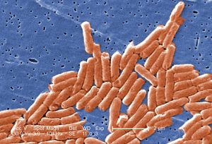 Salmonella bacteria as seen through an electron microscope.