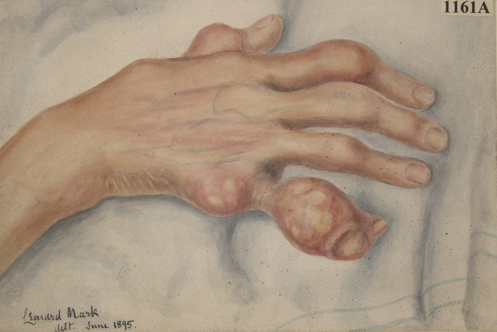 Drawing of the right hand of a woman suffering from chronic gout with tophi on the fingers.